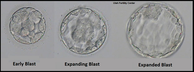 IVF embryo development - blastocyst stage - day 5